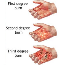burn-injury